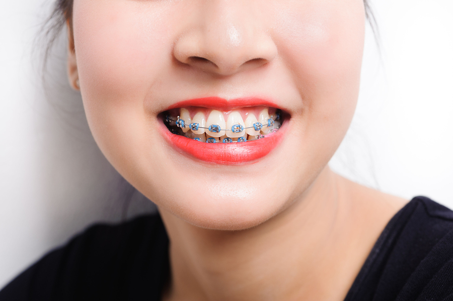 Orthodontist Roseville